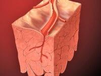 Coronary Diseases Can Provoke Dental Problems