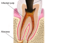 New Approach in Treating Cavities or Tooth Decay