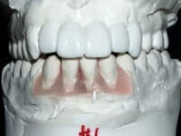 Dental Implants Improve Attitude to Life