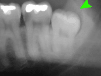 Dental Practitioners Confirm Dental Infection Can Be Fatal