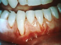 Oral ID System for Oral Cancer Screening