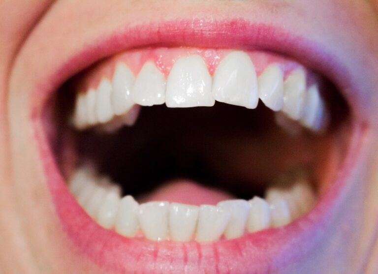 Oral cancer prevention
