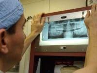 Tolerance to Dental Cavities Grows