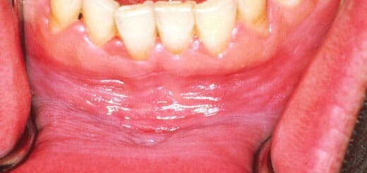 Infection in Oral Cavity