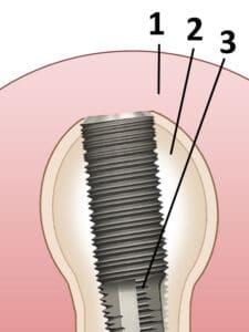 Peizosurgery