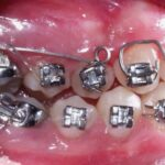 Orthodontic Treatment for Adults Turns into Trend