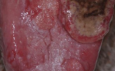 Oral Cancer Patients