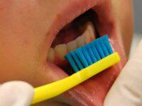 Innovations in Preventative Dental Care by Dr. Tim McNamara