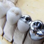 Ways to Save Dental Bridges for Long