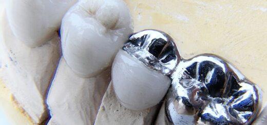 Dental Bridges for Long