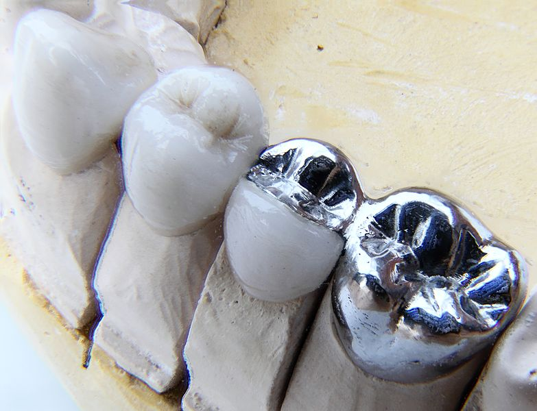 Dental Bridges for Long