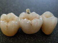 Choice of Dental Implants and Bridges Actual