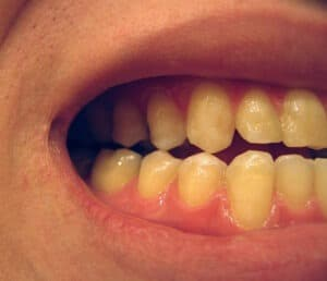 Discoloration of Your Teeth