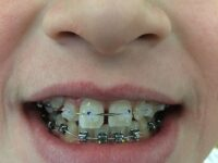 Treating Pain Caused by Wearing Braces