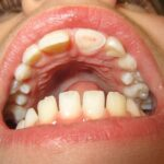 Effective Ways to Reduce Dental Pain Caused by Broken Tooth