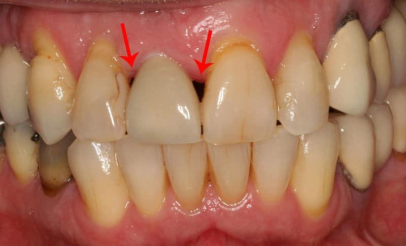dental muscles