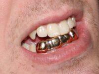 Free Adult Dental Care Day in Rutland Region