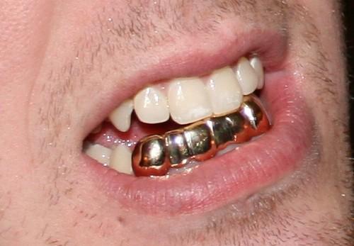 Free Adult Dental
