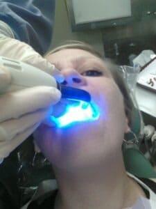 dental_procedure