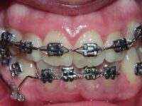 Gap in Access to Dental Care for Adults Observed