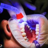 general dental care procedures