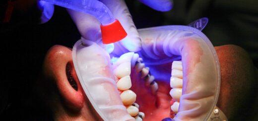 general dental care procedures